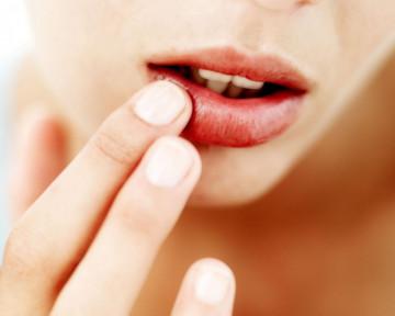 skuteczne-sposoby-na-popekane-usta